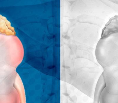 Cálculo renal: conheça mitos e verdades sobre a doença