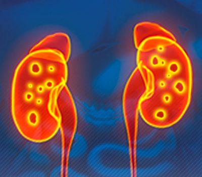 Cálculo renal: conheça opções de tratamento